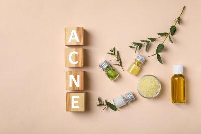 Oli essenziali per acne: rosmarino, lavanda, calendula e tea tree oil